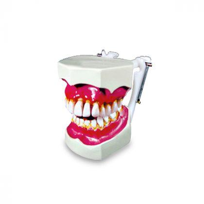 مولاژ دندان نمایش تورم لثه
