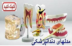 مولاژ دندان پزشکی