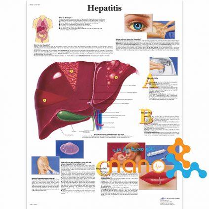 پوستر آموزشی هپاتیت